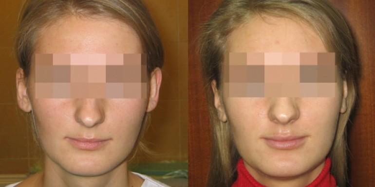 korekcja ucha, uszu - przed i po