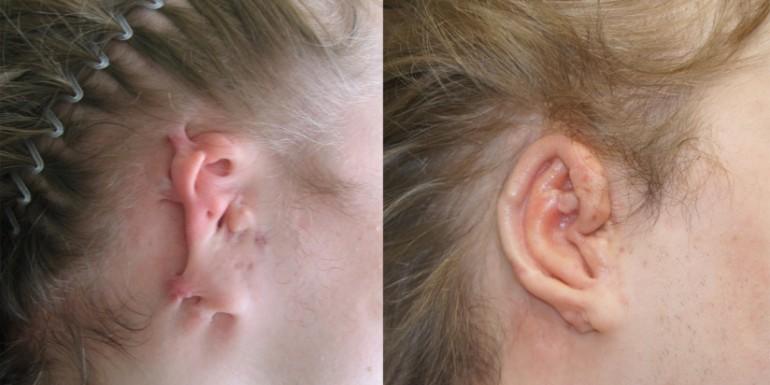 rekonstrukcja ucha - przed i po