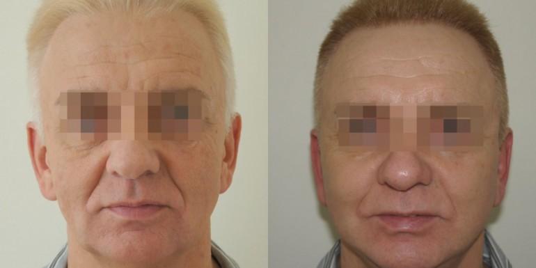 Lifting twarzy przed i po