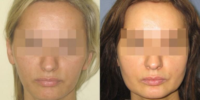 Facial Implants przed i po - zabieg