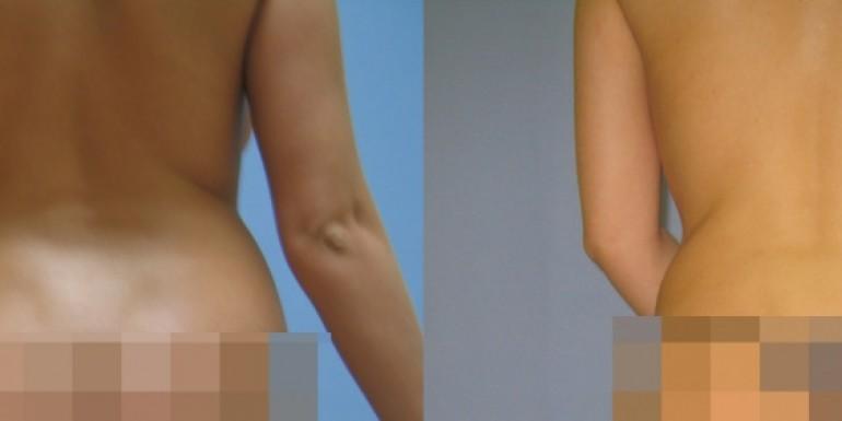 liposukcja przed i po - zabieg