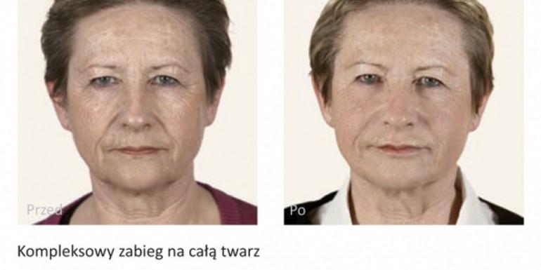 kwas hialuronowy przed i po