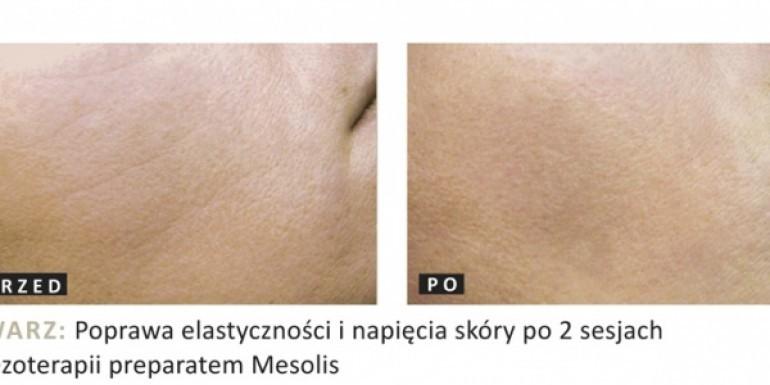 Mezoterapia przed i po