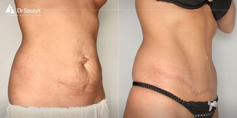 plastyka brzucha przed i po - zabieg