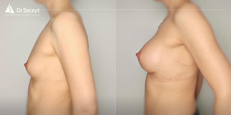 powiększenie biustu implantami przed i po - zabieg