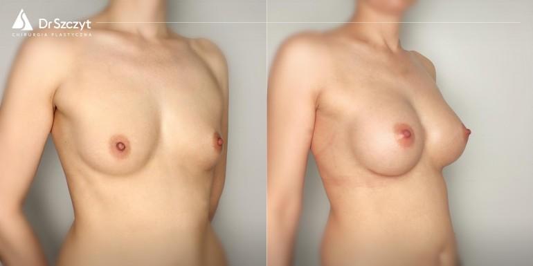 powiększenie piersi implantami przed i po - zabieg