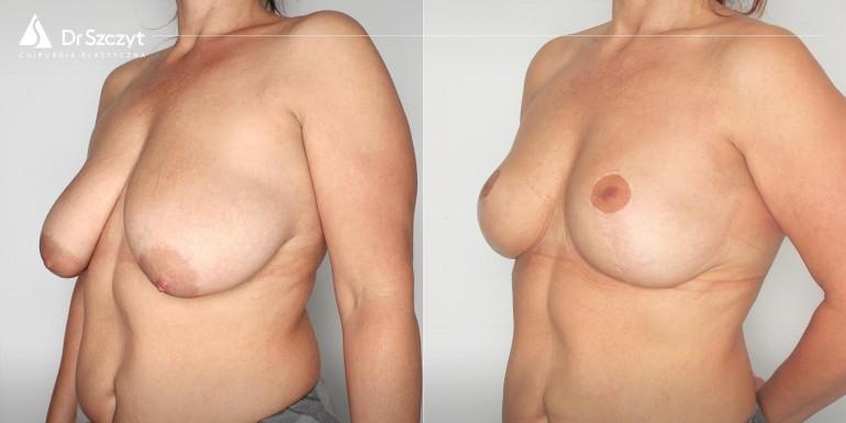 podniesienie biustu przed i po - zabieg