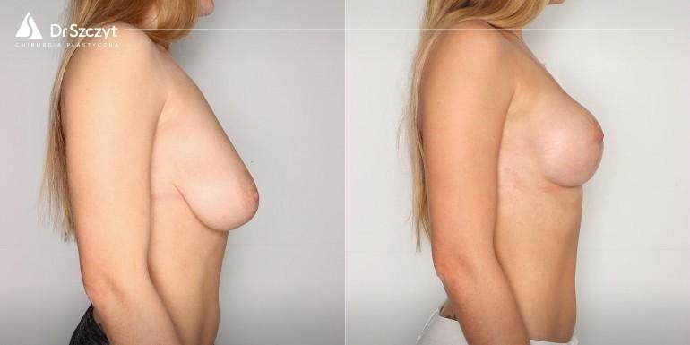 podniesienie piersi przed i po - zabieg