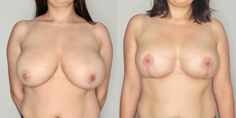 zmniejszenie piersi przed i po - zabieg
