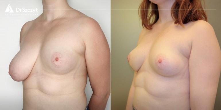 zmniejszenie biustu przed i po - zabieg