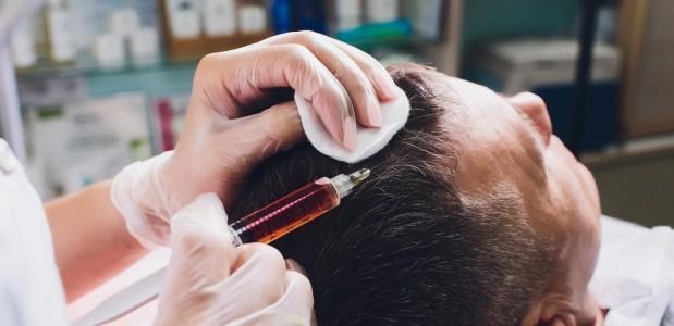 Łysienie androgenowe – przeszczep włosów FUE  jako jedna ze skuteczniejszych metod leczenia
